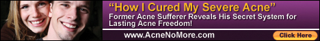 How I cured my acne for life- how to cure acne