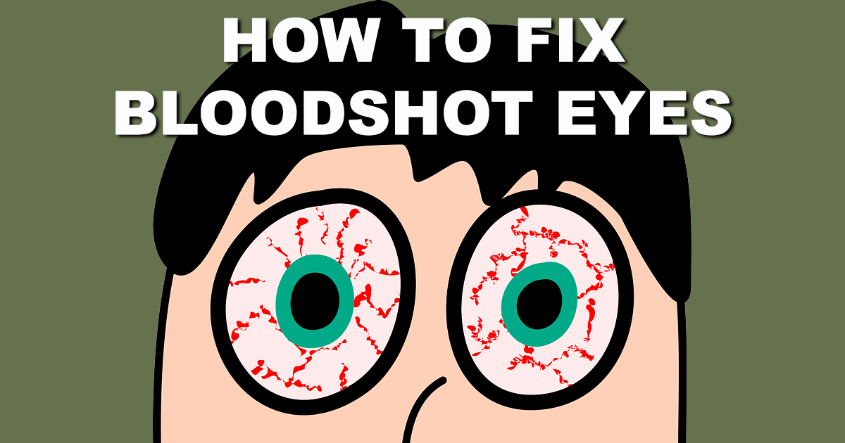 How to get Rid of Bloodshot Eyes and other Home Remedies